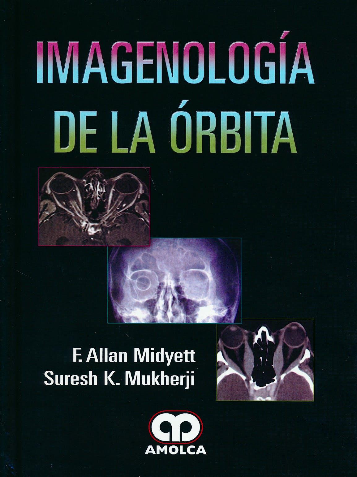 Portada del libro 9789585911345 Imagenología de la Órbita