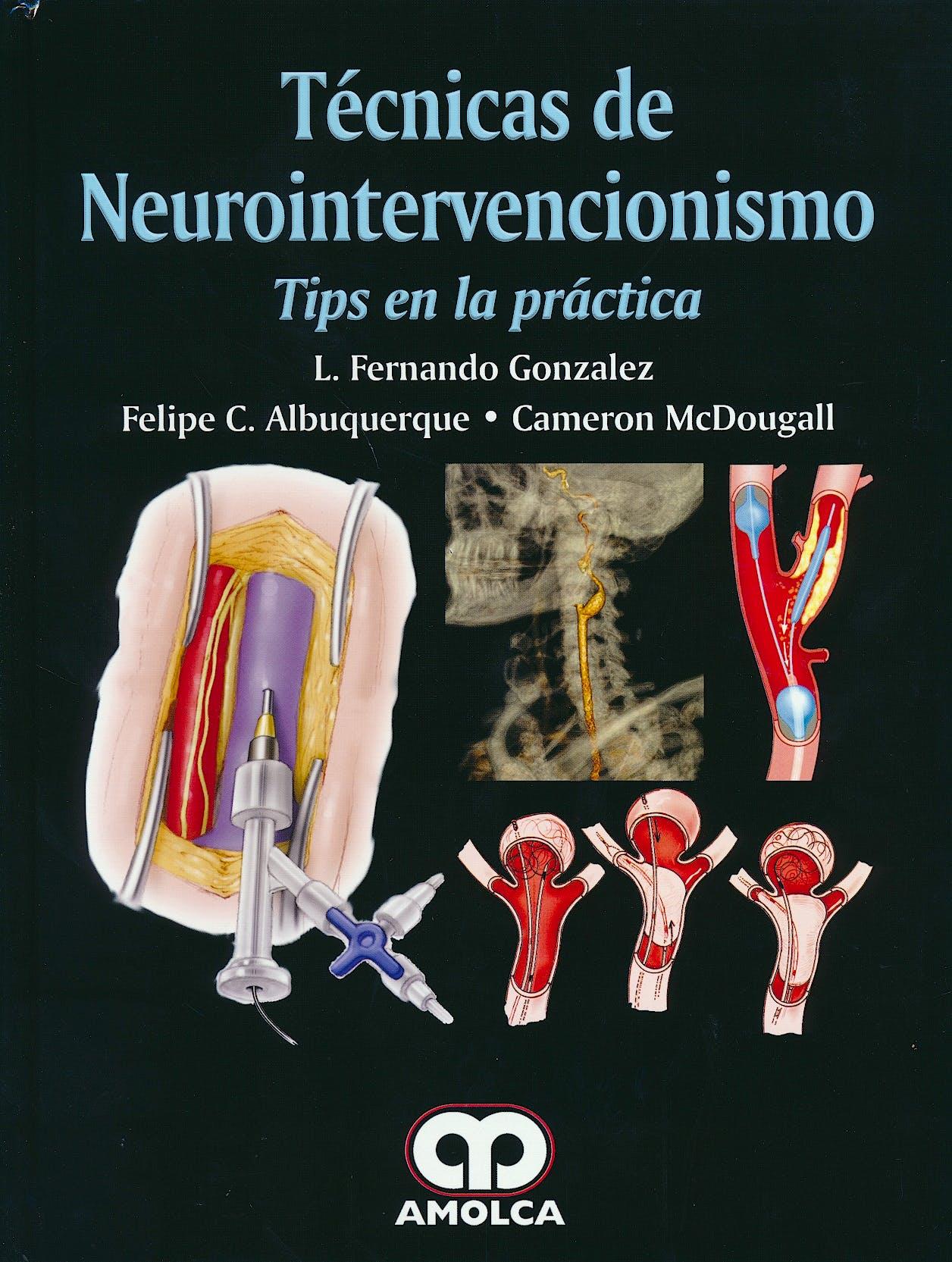 Portada del libro 9789585913714 Técnicas de Neurointervencionismo. Tips en la Práctica