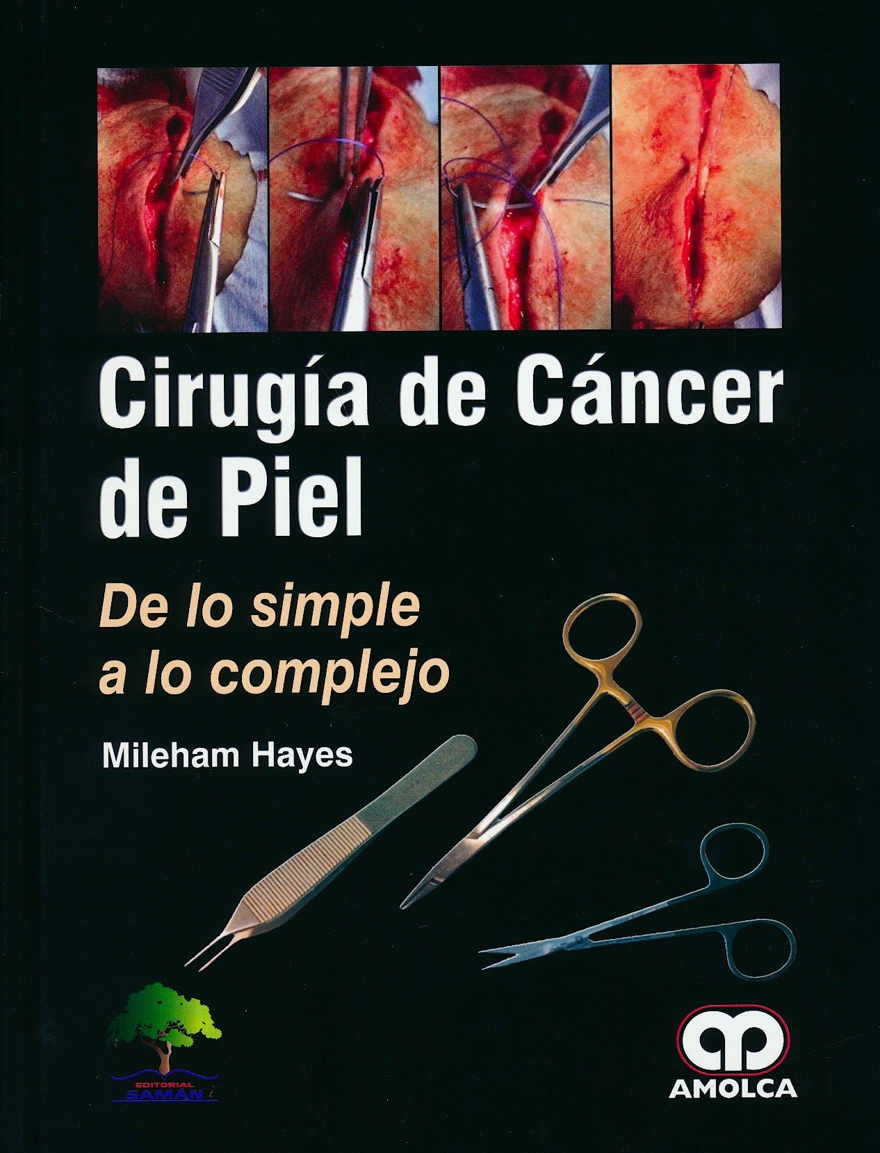 Portada del libro 9789585913721 Cirugía de Cáncer de Piel. De lo Simple a lo Complejo