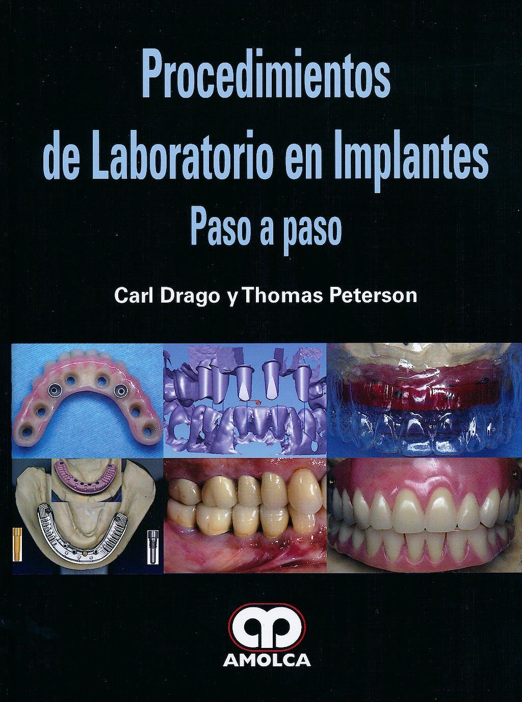 Portada del libro 9789587550290 Procedimientos de Laboratorio en Implantes. Paso a Paso