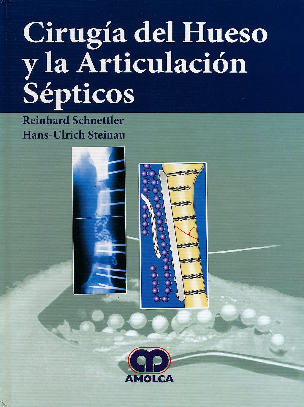 Portada del libro 9789587550320 Cirugia del Hueso y la Articulacion Septicos