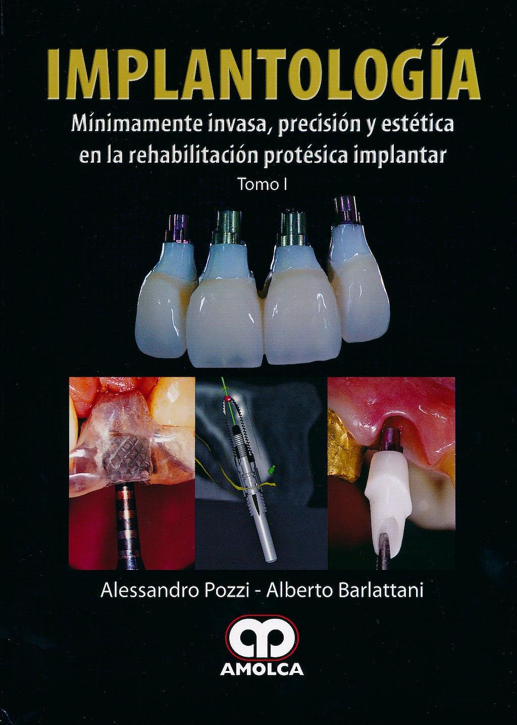 Portada del libro 9789587550337 Implantología Mínimamente Invasiva, Precisión y Estética en la Rehabilitación Protésica Implantar (2 vols.)