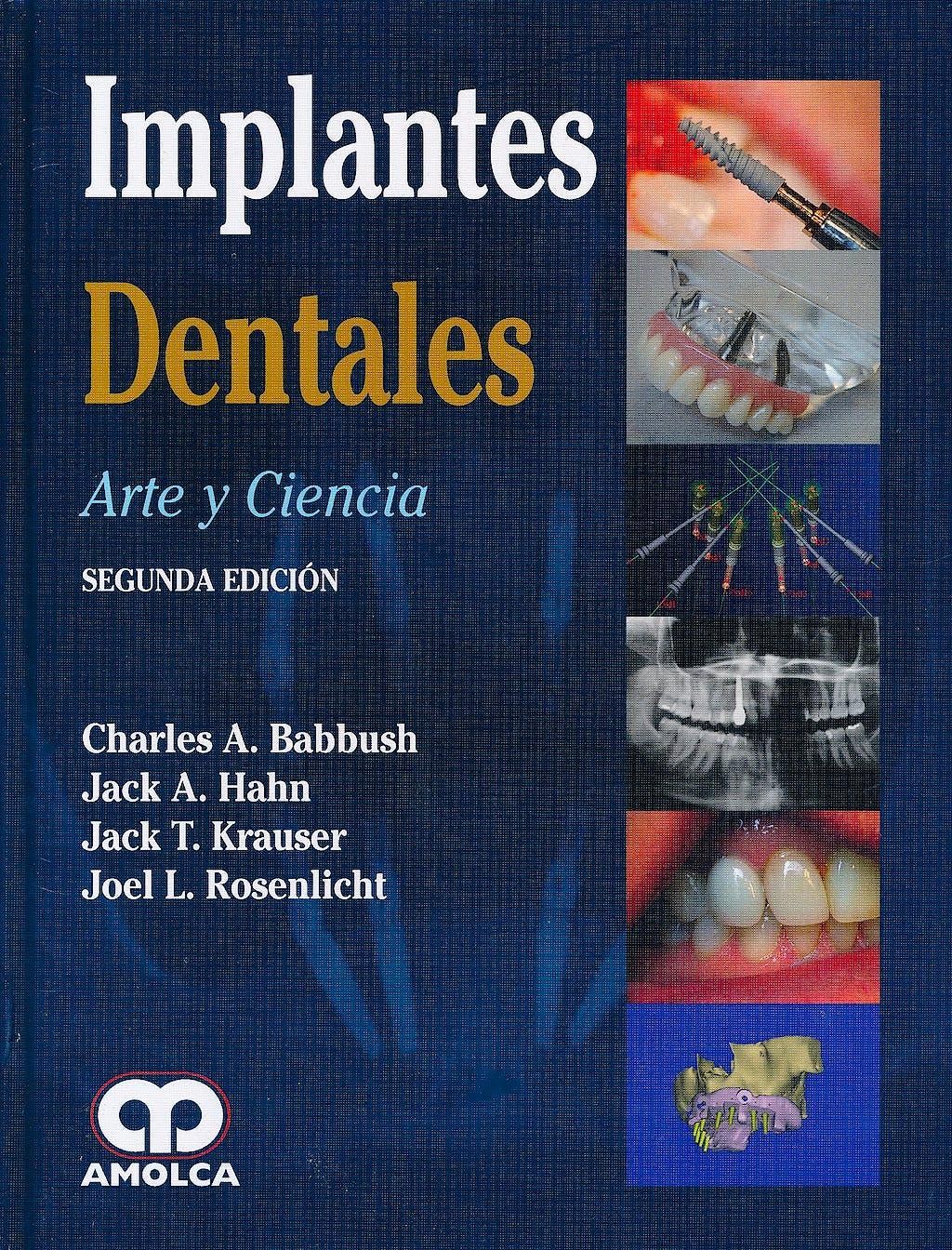 Portada del libro 9789587550368 Implantes Dentales. Arte y Ciencia