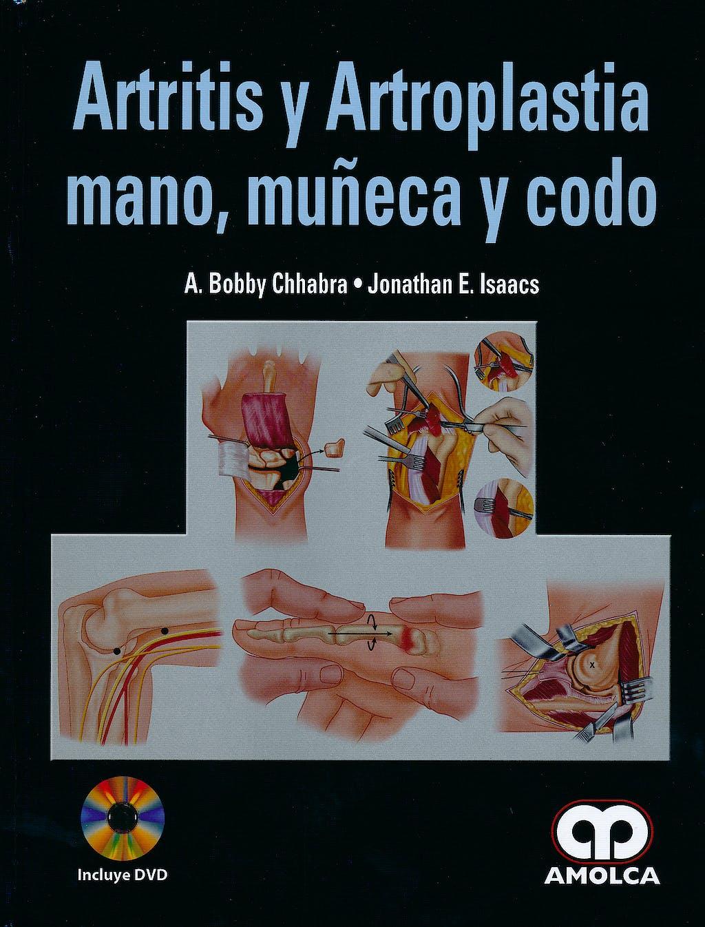 Portada del libro 9789587550405 Artritis y Artroplastia Mano, Muñeca y Codo + Dvd