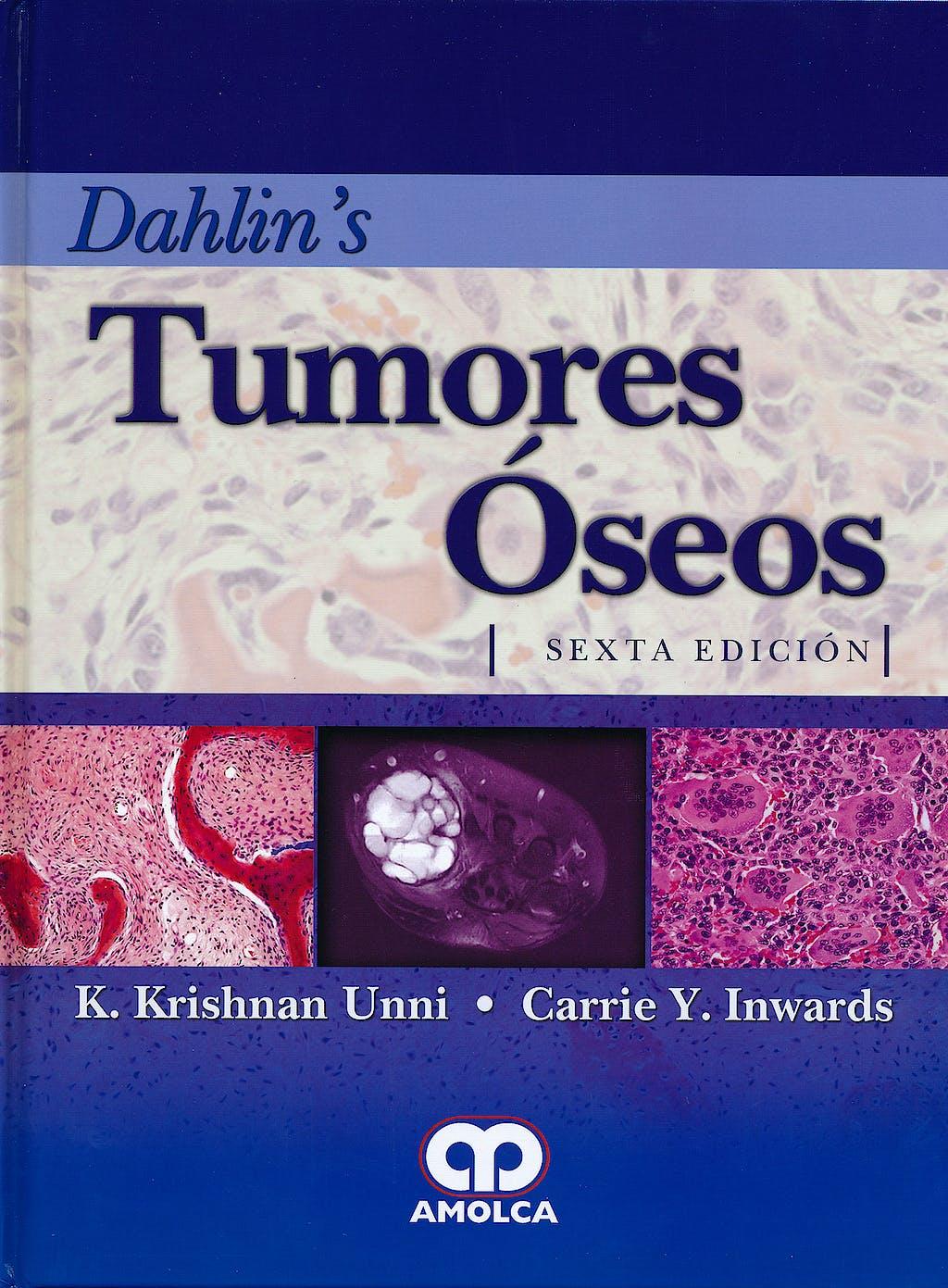 Portada del libro 9789587550429 Dahlin's Tumores Óseos. Aspectos y Datos Generales sobre 10.165 Casos