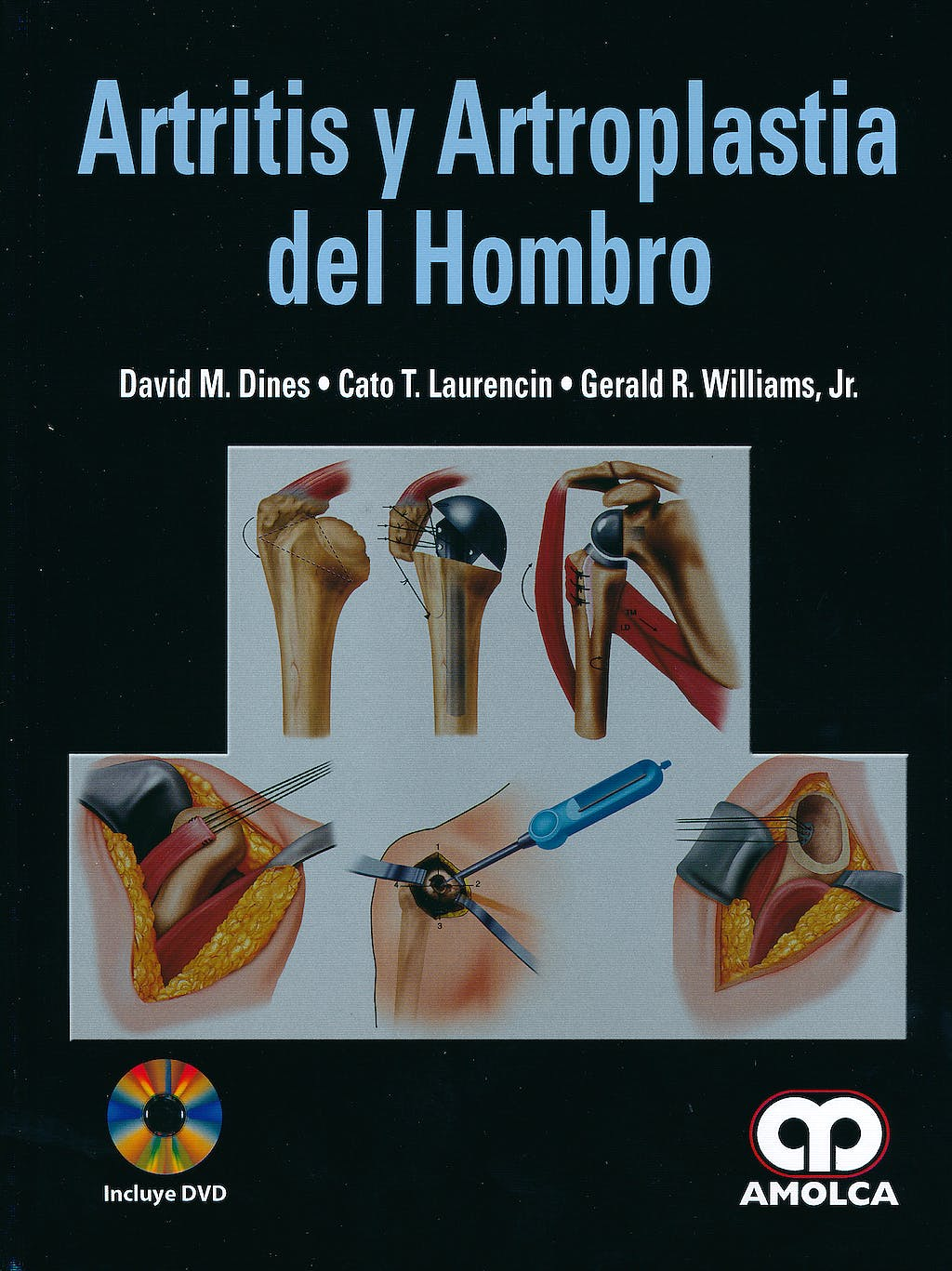Portada del libro 9789587550443 Artritis y Artroplastia del Hombro + Dvd