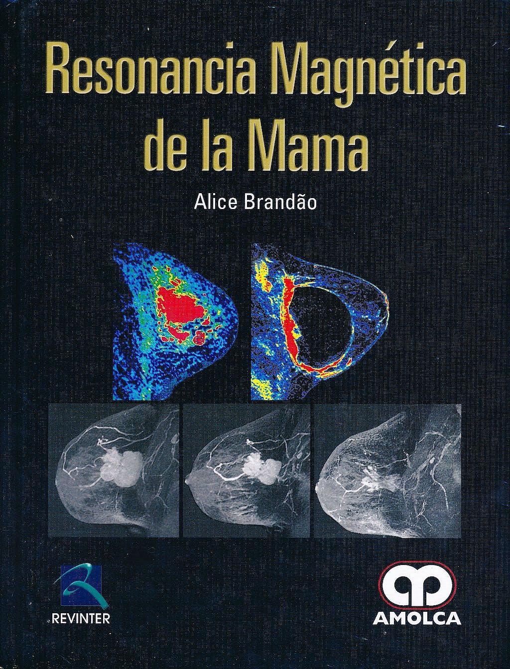 Portada del libro 9789587550573 Resonancia Magnetica de la Mama