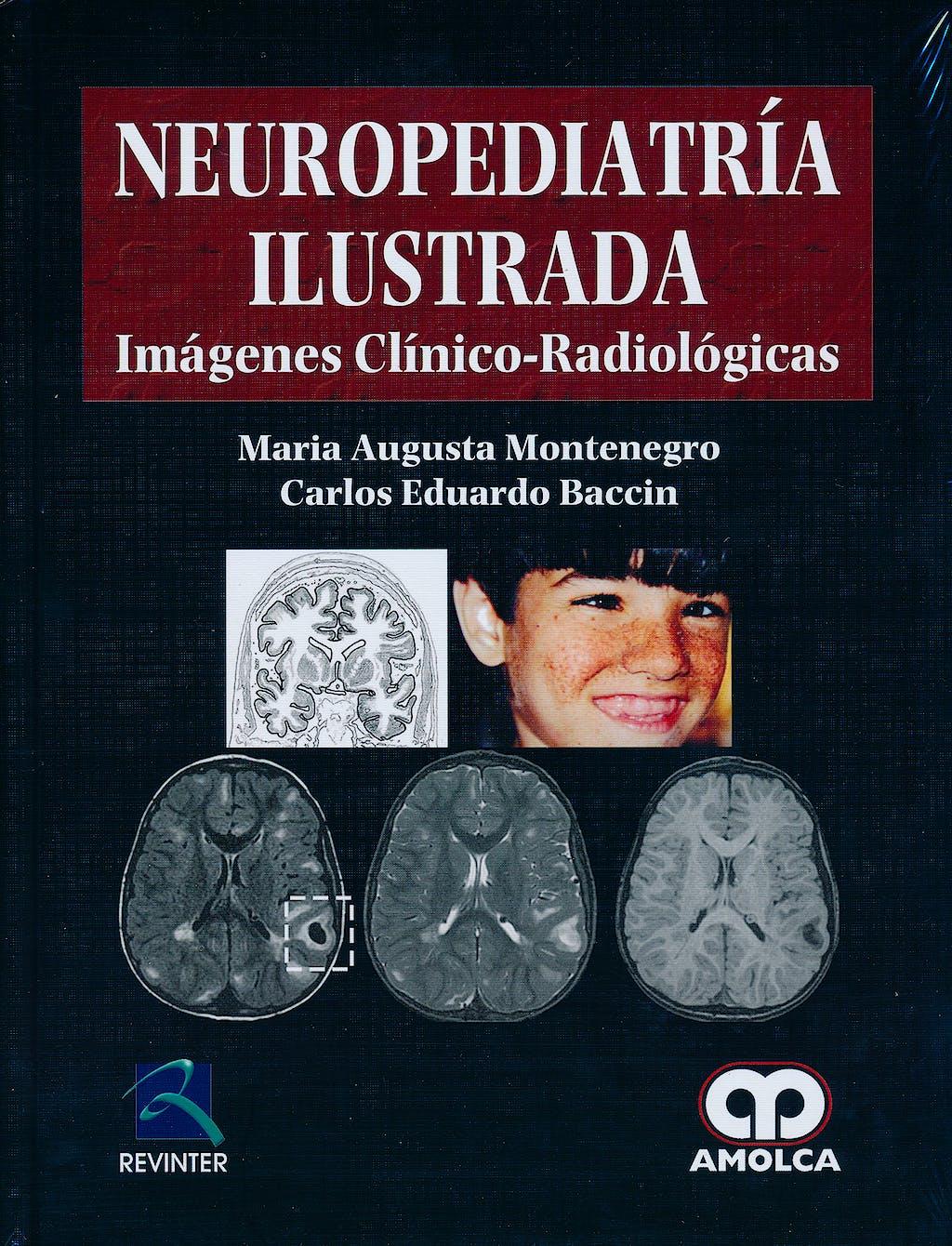 Portada del libro 9789587550818 Neuropediatría Ilustrada. Imágenes Clínico-Radiológicas