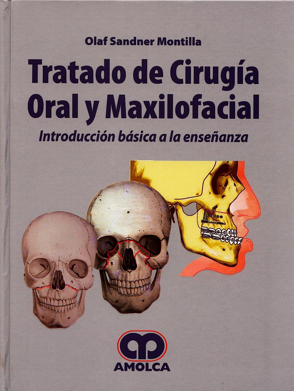 Portada del libro 9789588328034 Tratado de Cirugía Oral y Maxilofacial. Introducción Básica a la Enseñanza