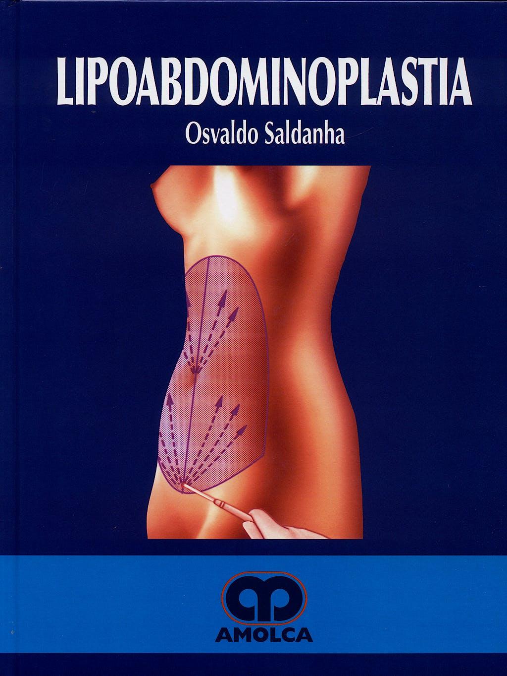 Portada del libro 9789588328058 Lipoabdominoplastia