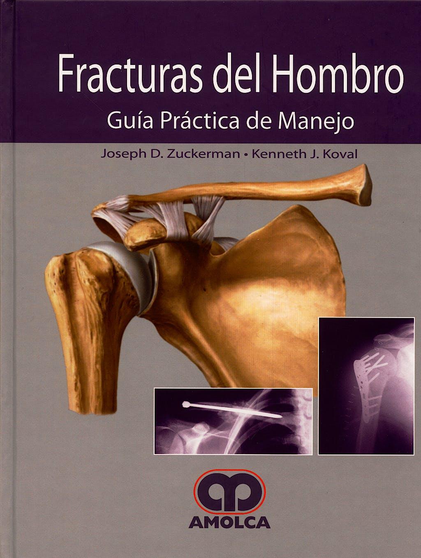 Portada del libro 9789588328140 Fracturas del Hombro. Guia Practica de Manejo