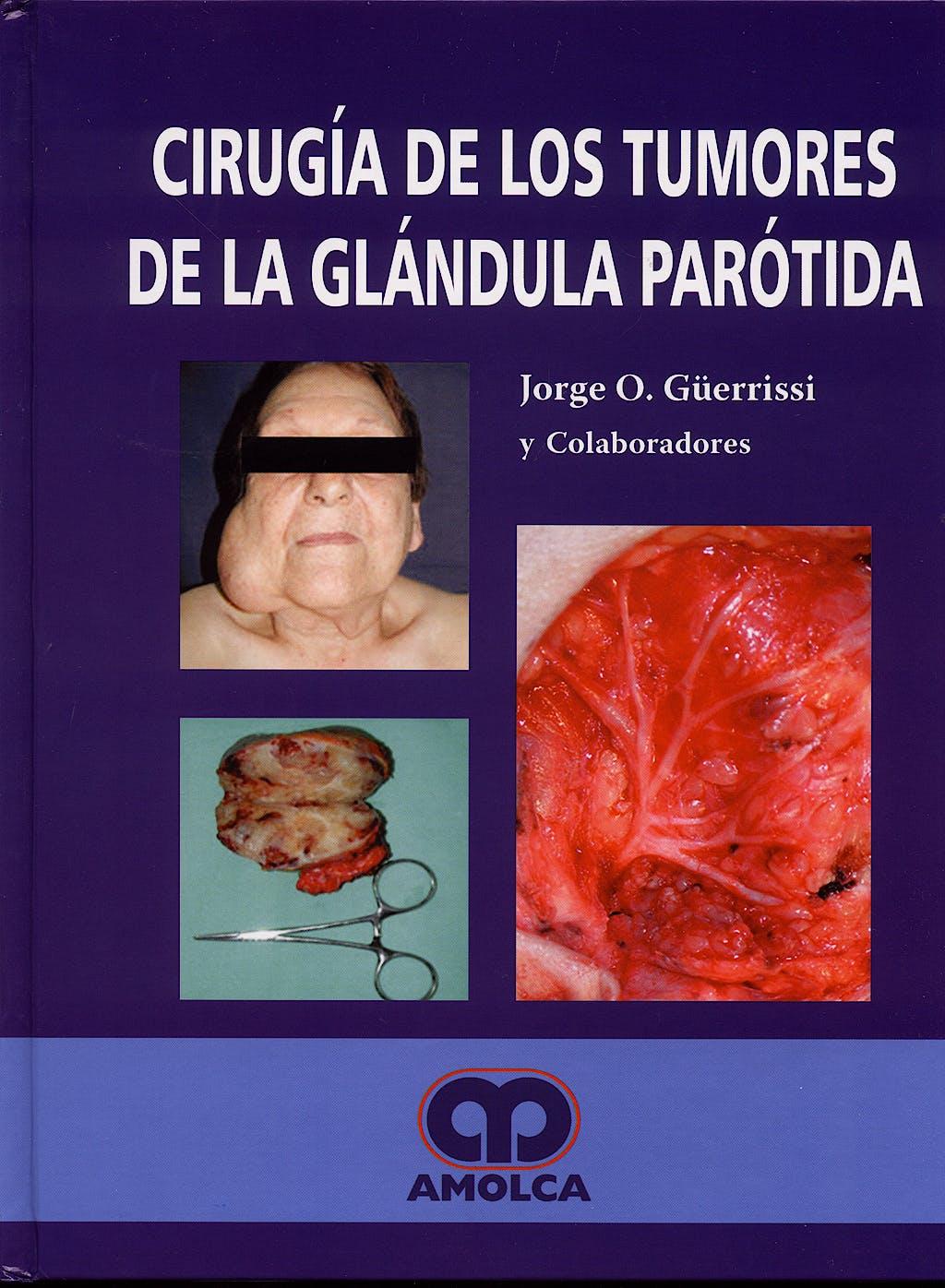 Portada del libro 9789588328218 Cirugia de los Tumores de la Glandula Parotida