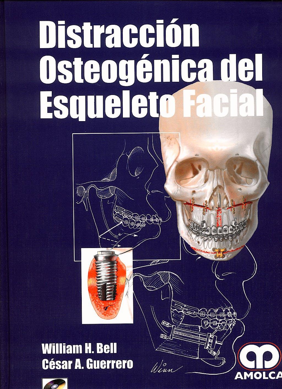 Portada del libro 9789588328676 Distracción Osteogénica del Esqueleto Facial + CD-ROM