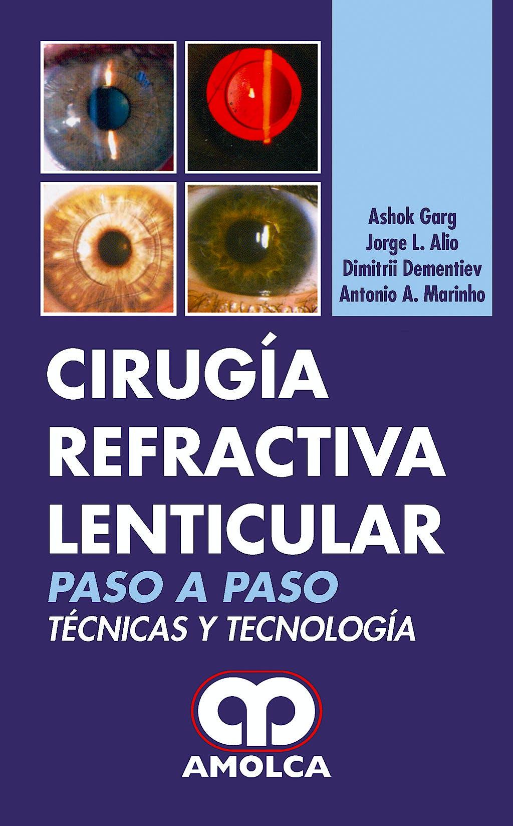 Portada del libro 9789588328713 Cirugía Refractiva Lenticular. Paso a Paso. Tecnicas y Tecnología