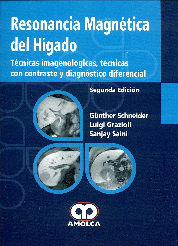 Portada del libro 9789588328799 Resonancia Magnetica del Higado. Tecnicas Imagenologicas, Tecnicas con Contraste y Diagnostico Diferencial