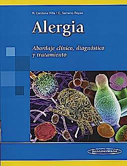 Portada del libro 9789588443058 Alergia. Abordaje Clinico, Diagnostico y Tratamiento