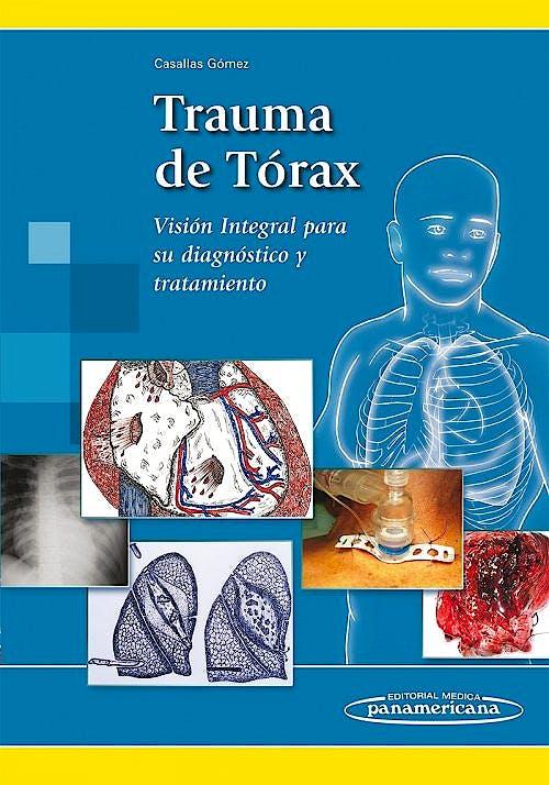 Portada del libro 9789588443706 Trauma de Tórax. Visión Integral para Su Diagnóstico y Tratamiento