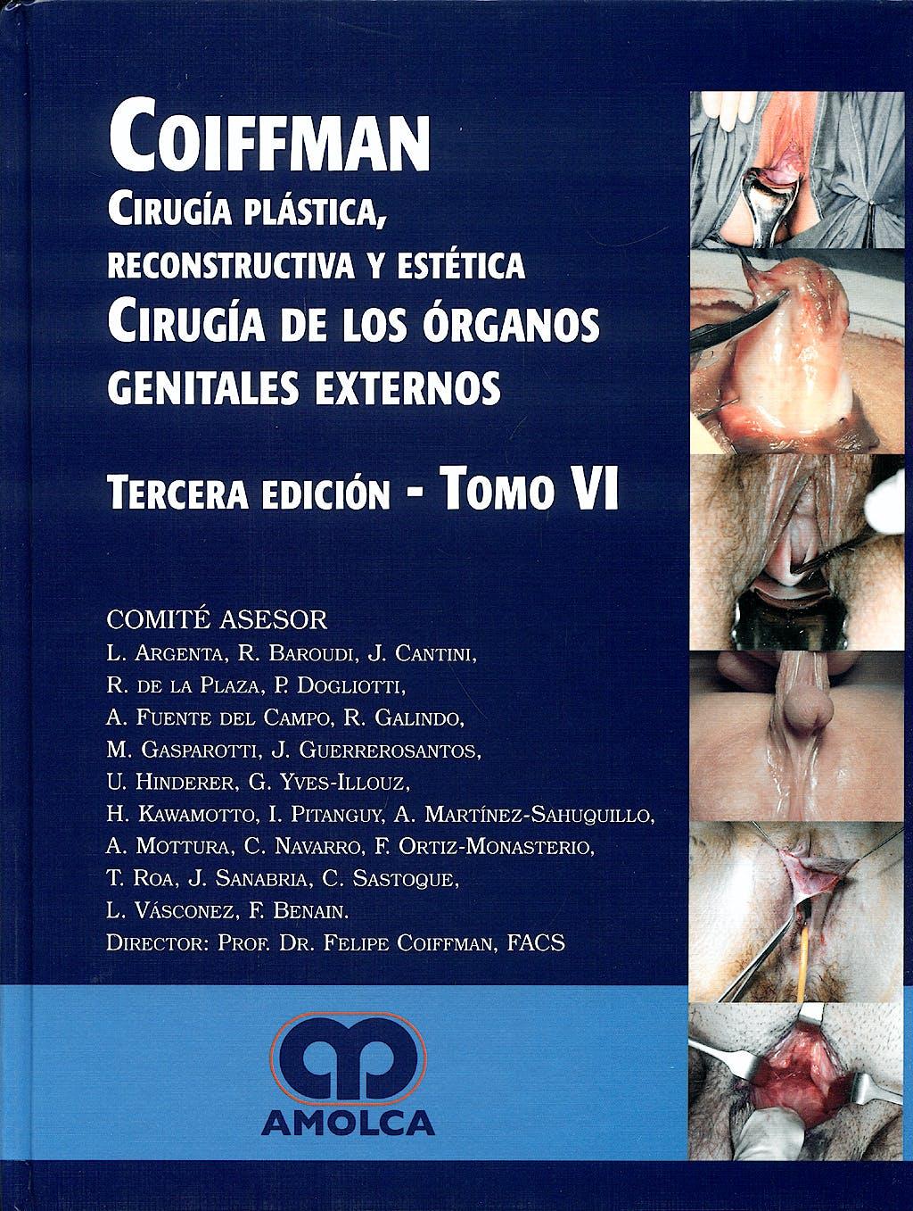 Portada del libro 9789588473079 Cirugía Plástica, Reconstructiva y Estética, Tomo VI: Cirugía de Órganos Genitales Externos