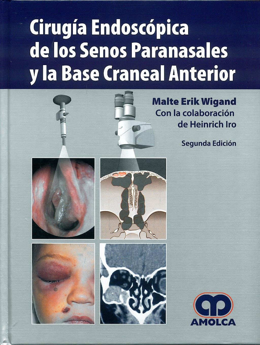 Portada del libro 9789588473093 Cirugía Endoscópica de los Senos Paranasales y la Base Craneal Anterior