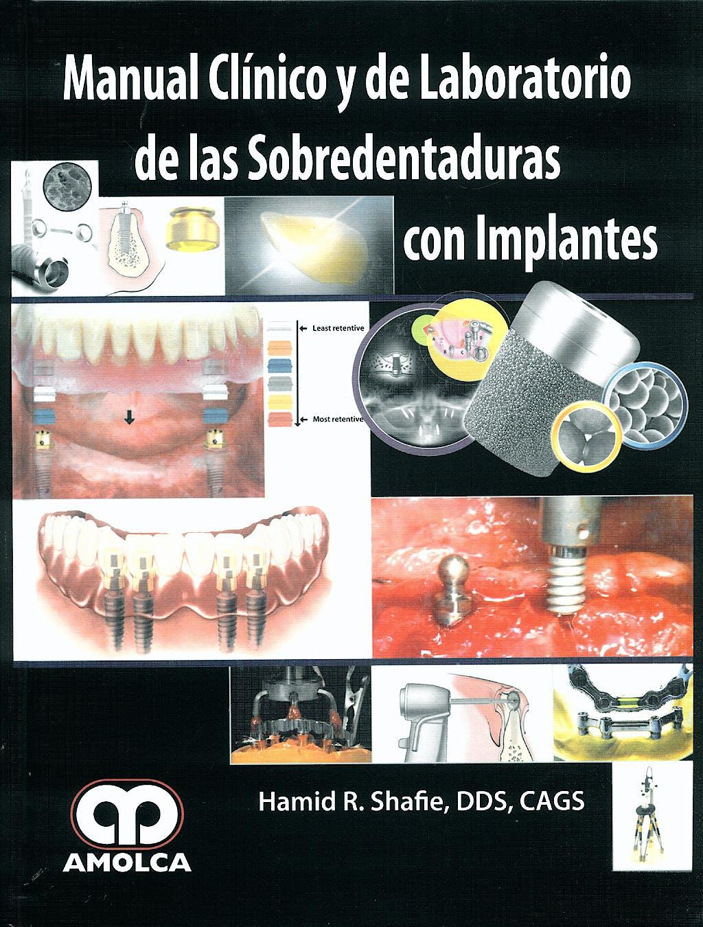 Portada del libro 9789588473161 Manual Clínico y de Laboratorio de las Sobredentaduras con Implantes
