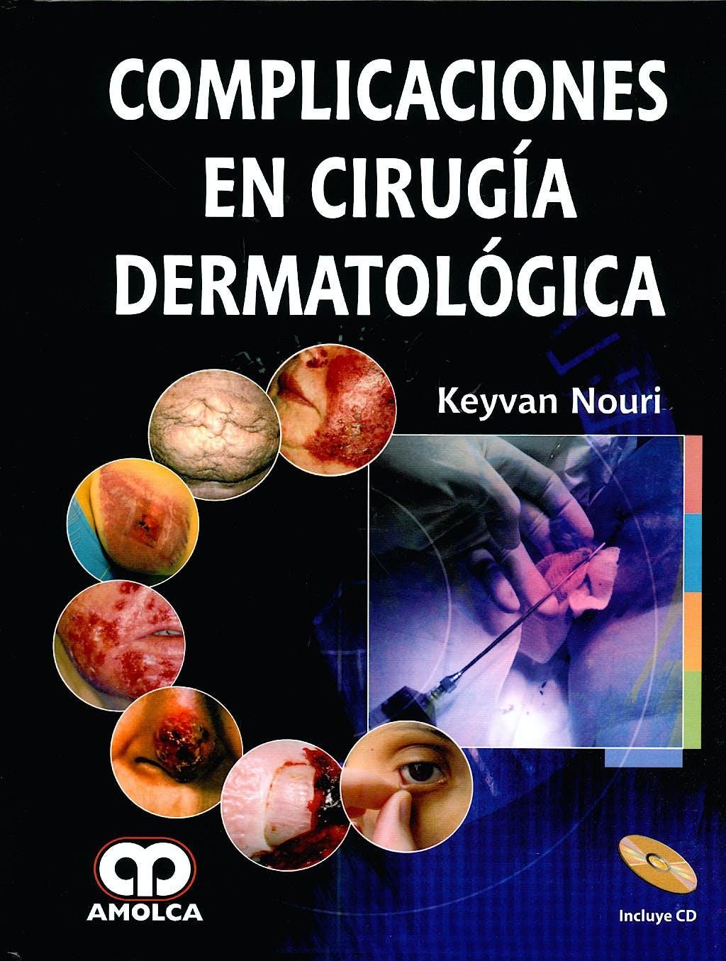 Portada del libro 9789588473192 Complicaciones en Cirugía Dermatológica + CD-ROM