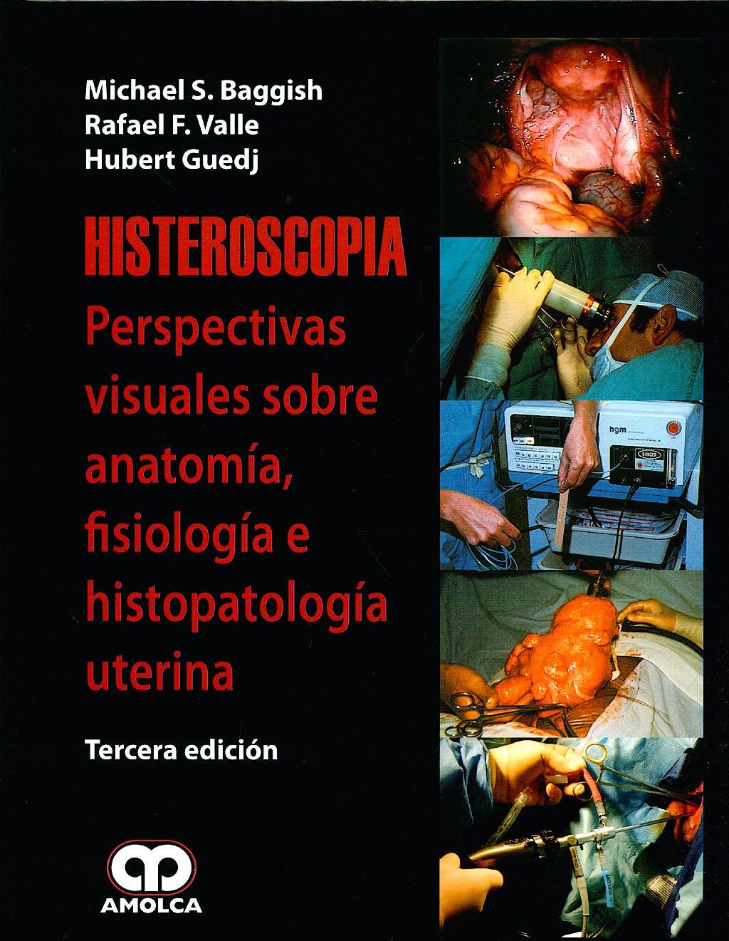 Portada del libro 9789588473208 Histeroscopia. Perspectivas Visuales de la Anatomía, Fisiología e Histopatología Uterina