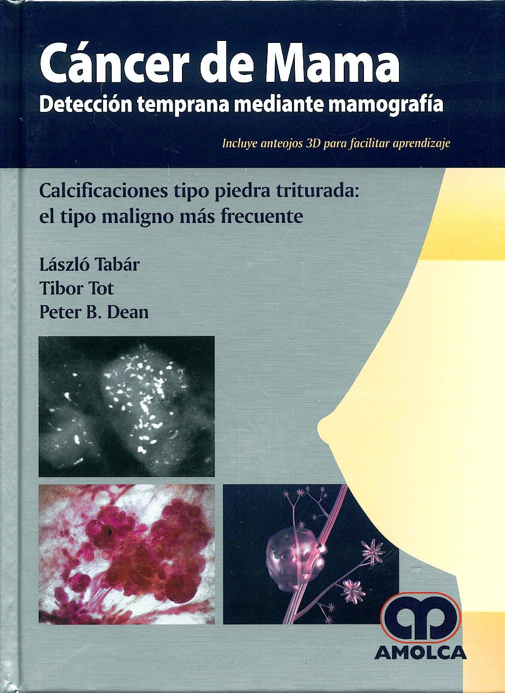Portada del libro 9789588473222 Cáncer de Mama. Detección Temprana mediante Mamografía. Calcificaciones Tipo Piedra Triturada: el Tipo Maligno más Frecuente