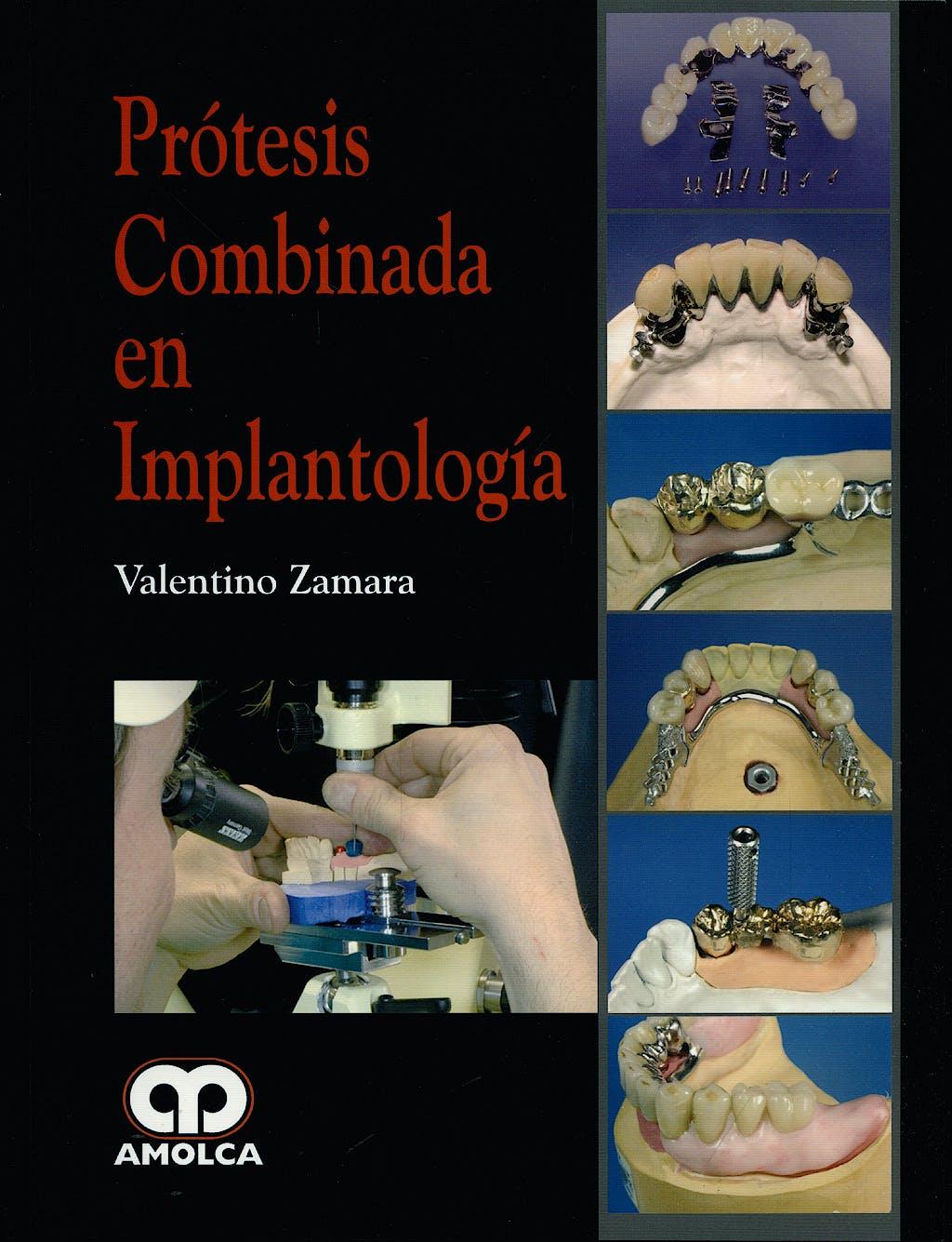 Portada del libro 9789588473437 Prótesis Combinada en Implantología