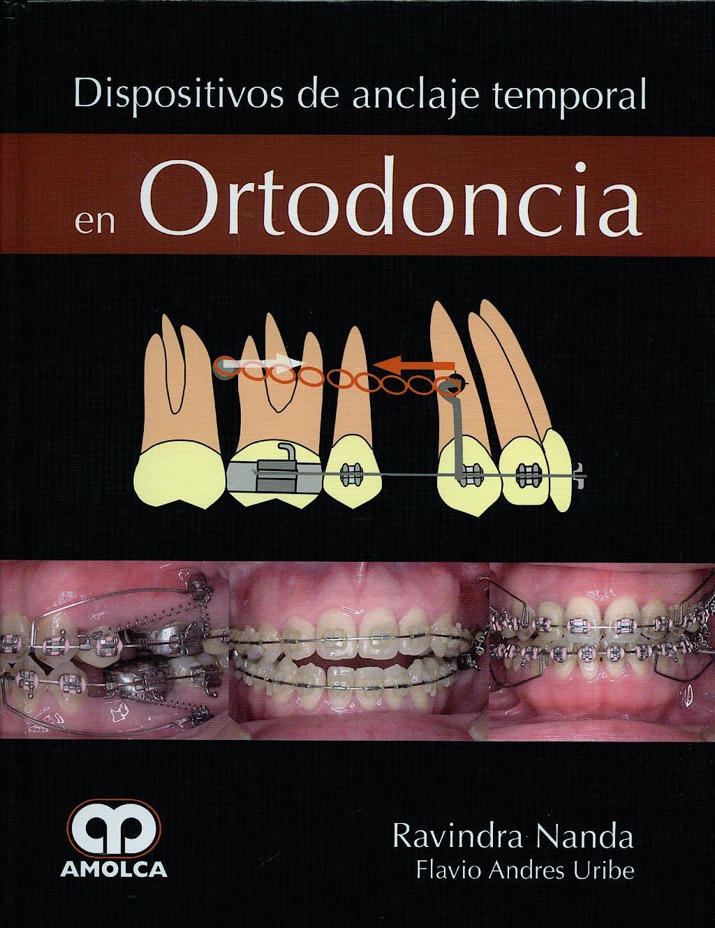 Portada del libro 9789588473451 Dispositivos de Anclaje Temporal en Ortodoncia
