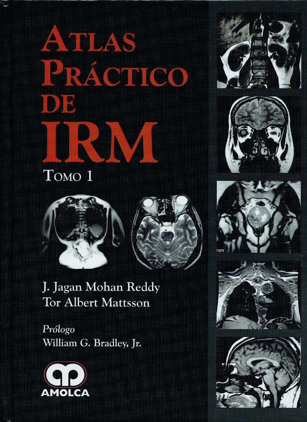 Portada del libro 9789588473529 Atlas Práctico de IRM, 2 Vols.