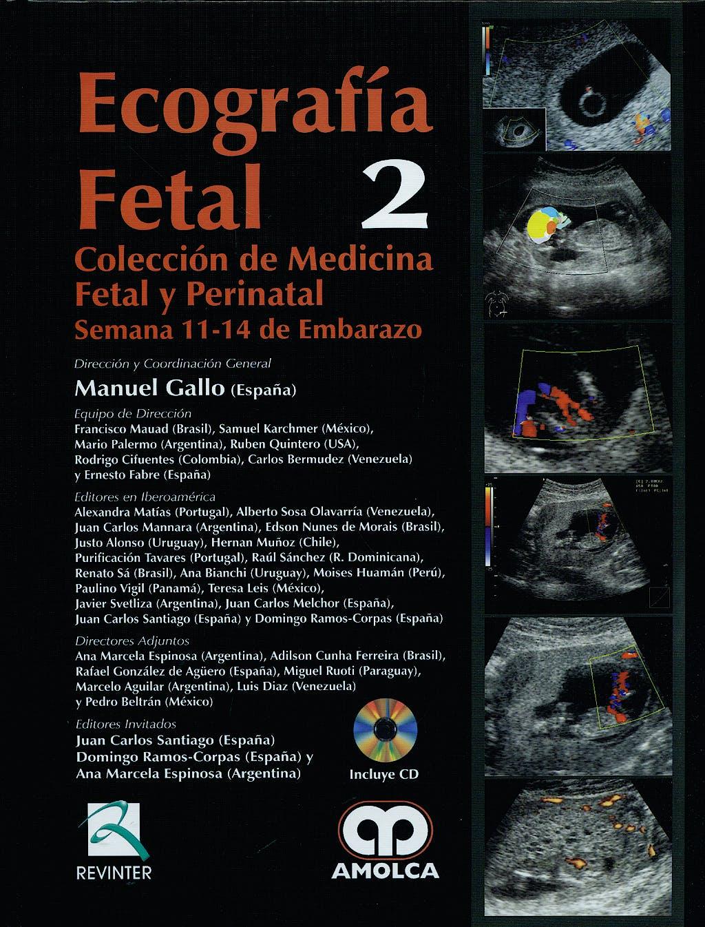 Portada del libro 9789588473543 Ecografia Fetal. Semana 11-14 de Embarazo + Dvd (Coleccion Medicina Fetal y Perinatal, Vol. 2)