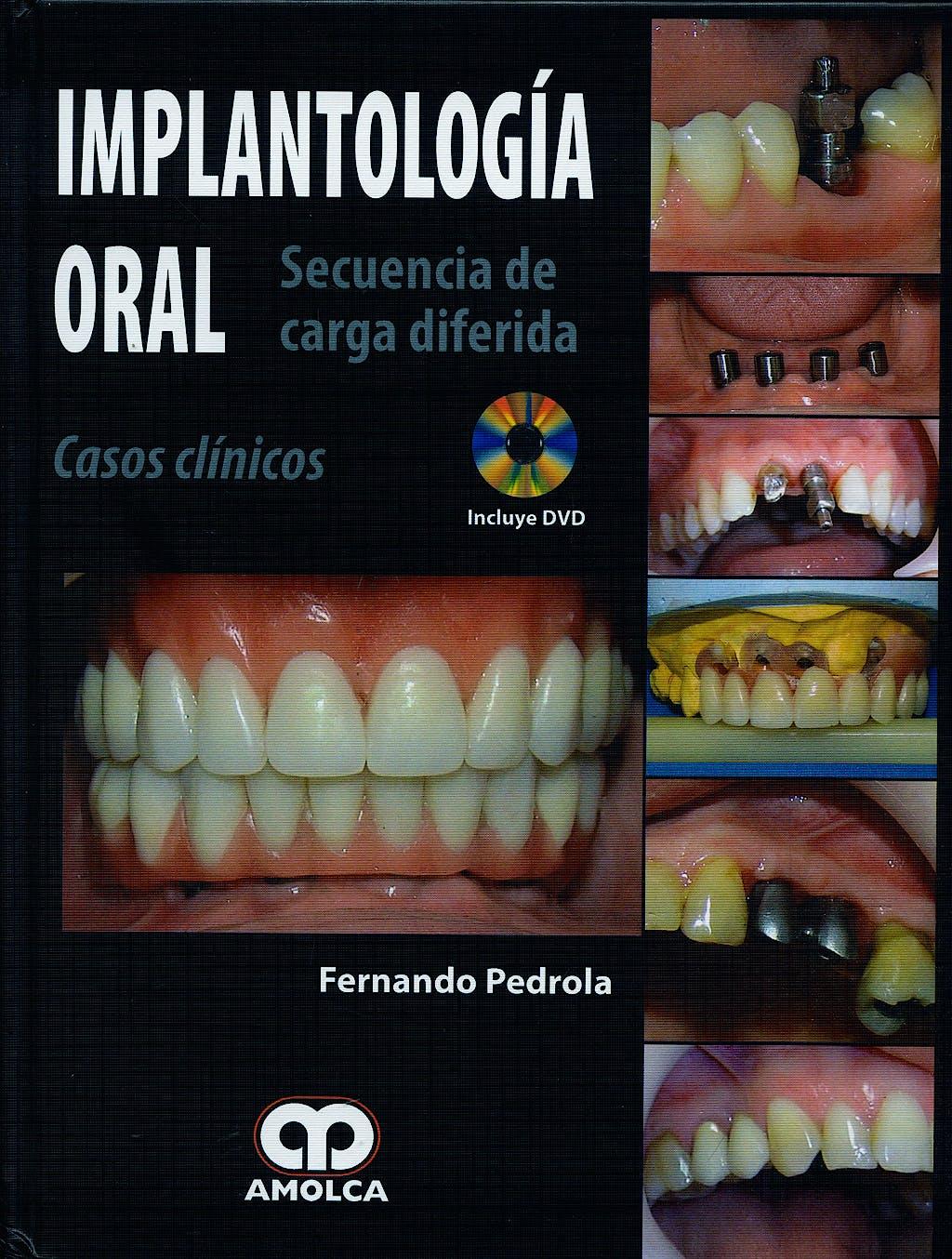 Portada del libro 9789588473826 Implantología Oral. Secuencia de Carga Diferida. Casos Clínicos + DVD