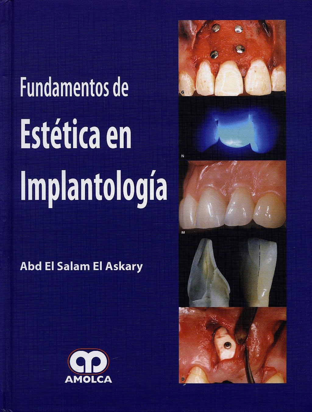 Portada del libro 9789588473857 Fundamentos de Estética en Implantología
