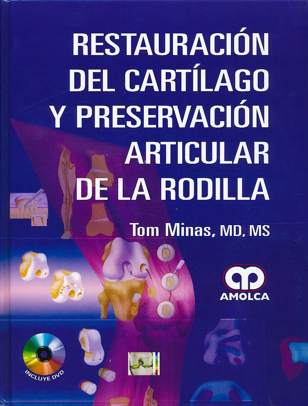 Portada del libro 9789588760049 Restauracion del Cartilago y Preservacion Articular de la Rodilla + Dvd