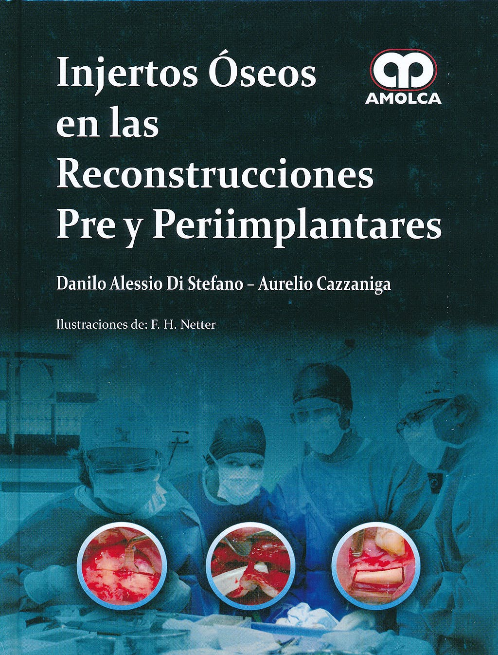 Portada del libro 9789588760063 Injertos Oseos en las Reconstrucciones Pre y Periimplantares