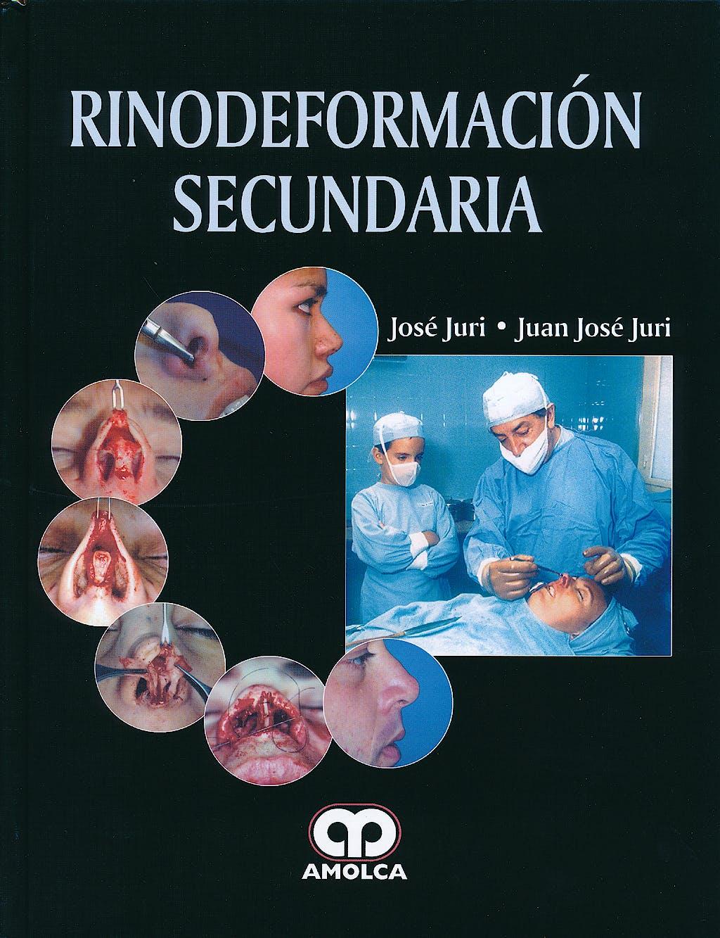Portada del libro 9789588760117 Rinodeformación Secundaria