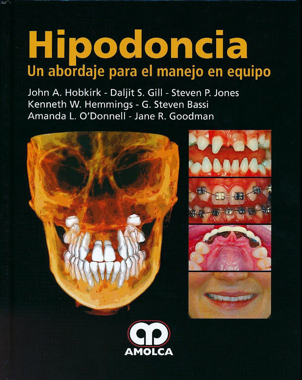 Portada del libro 9789588760261 Hipodoncia. Un Abordaje para el Manejo en Equipo