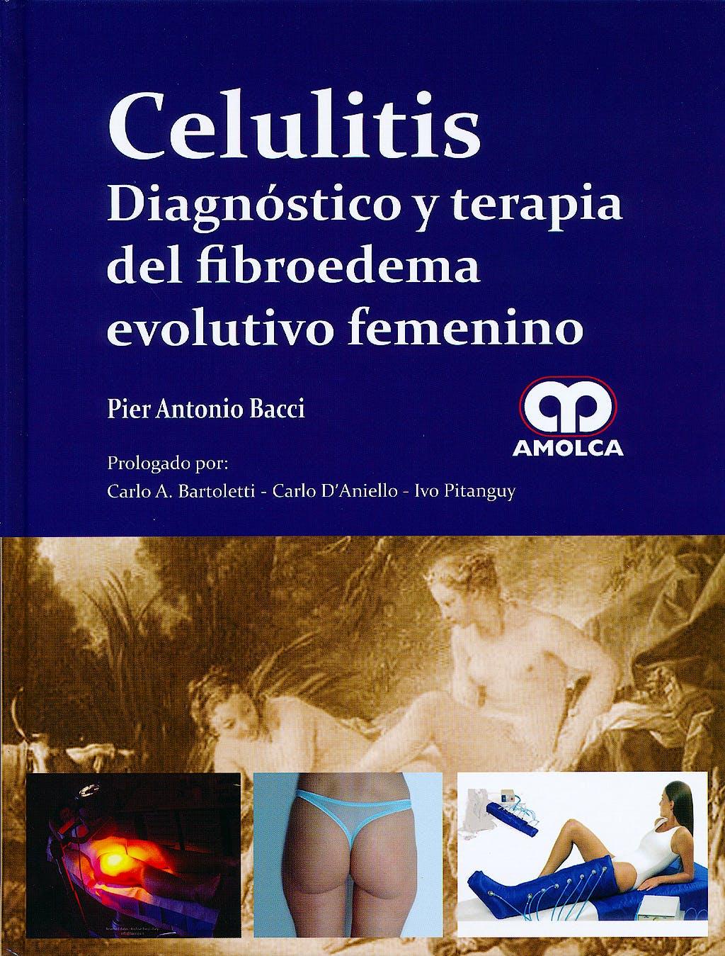 Portada del libro 9789588760391 Celulitis. Diagnóstico y Terapia del Fibroedema Evolutivo Femenino