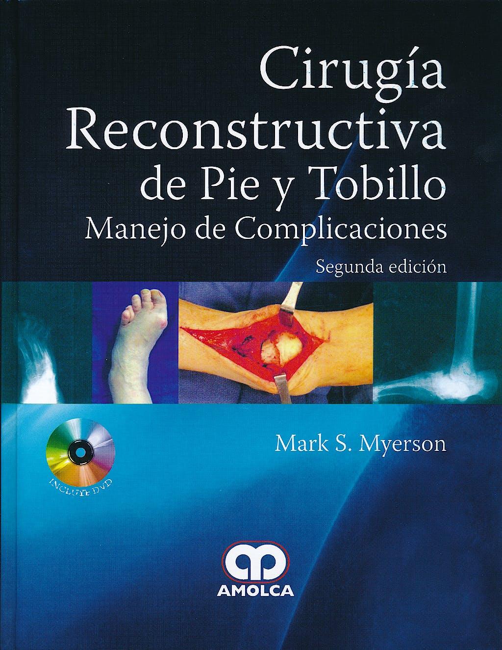 Portada del libro 9789588760476 Cirugía Reconstructiva de Pie y Tobillo. Manejo de Complicaciones + DVD
