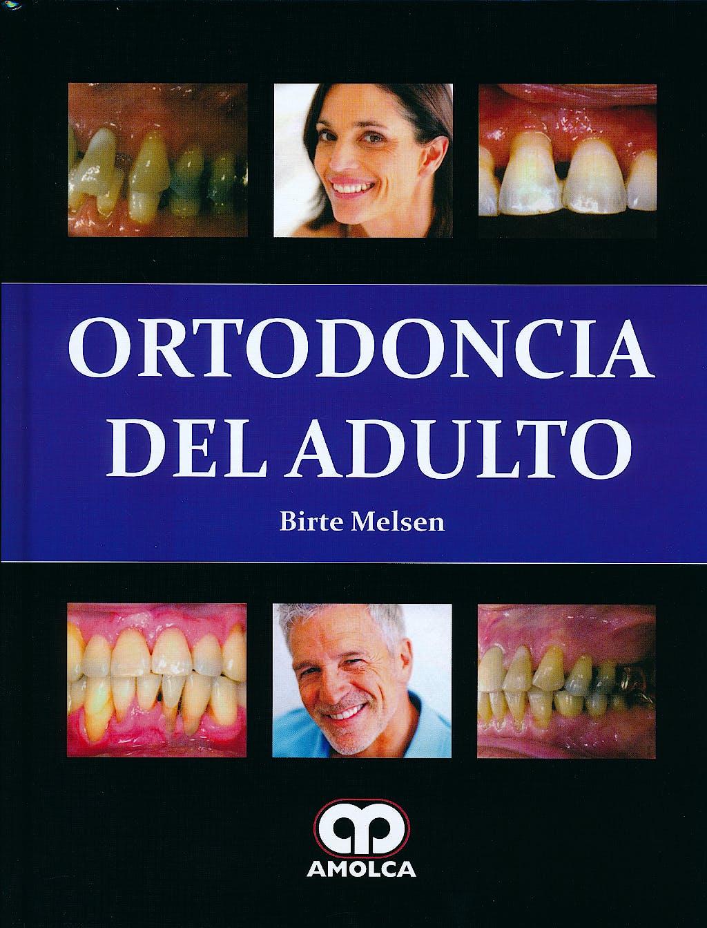 Portada del libro 9789588760490 Ortodoncia del Adulto