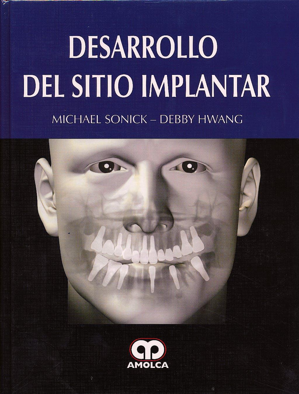 Portada del libro 9789588760636 Desarrollo del Sitio Implantar