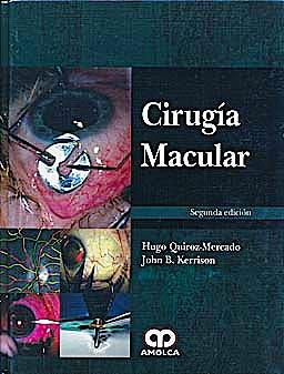 Portada del libro 9789588760643 Cirugia Macular