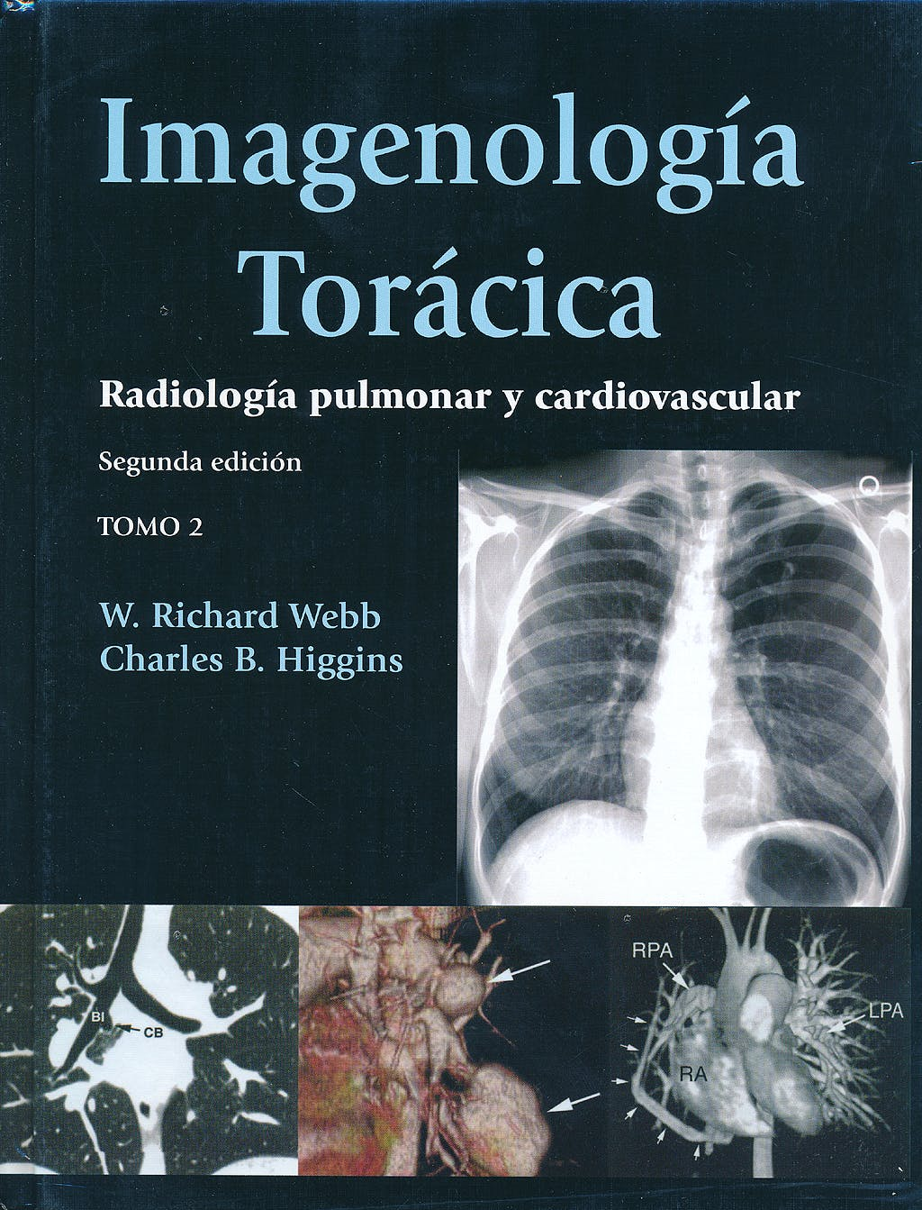 Portada del libro 9789588760742 Imagenología Torácica. Radiología Pulmonar y Cardiovascular, 2 Vols.