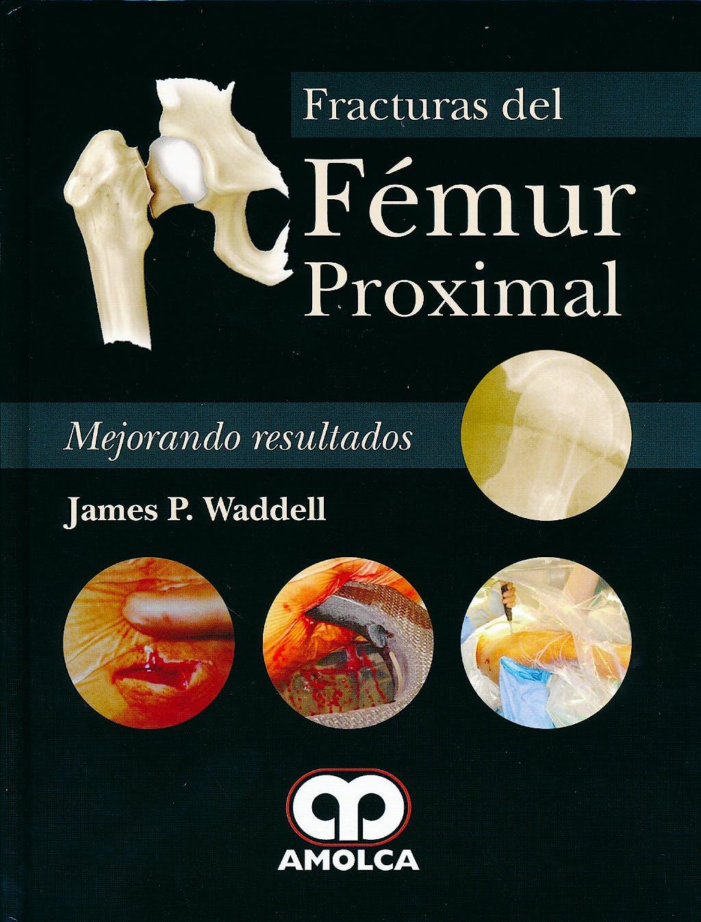 Portada del libro 9789588760773 Fracturas del Femur Proximal. Mejorando Resultados