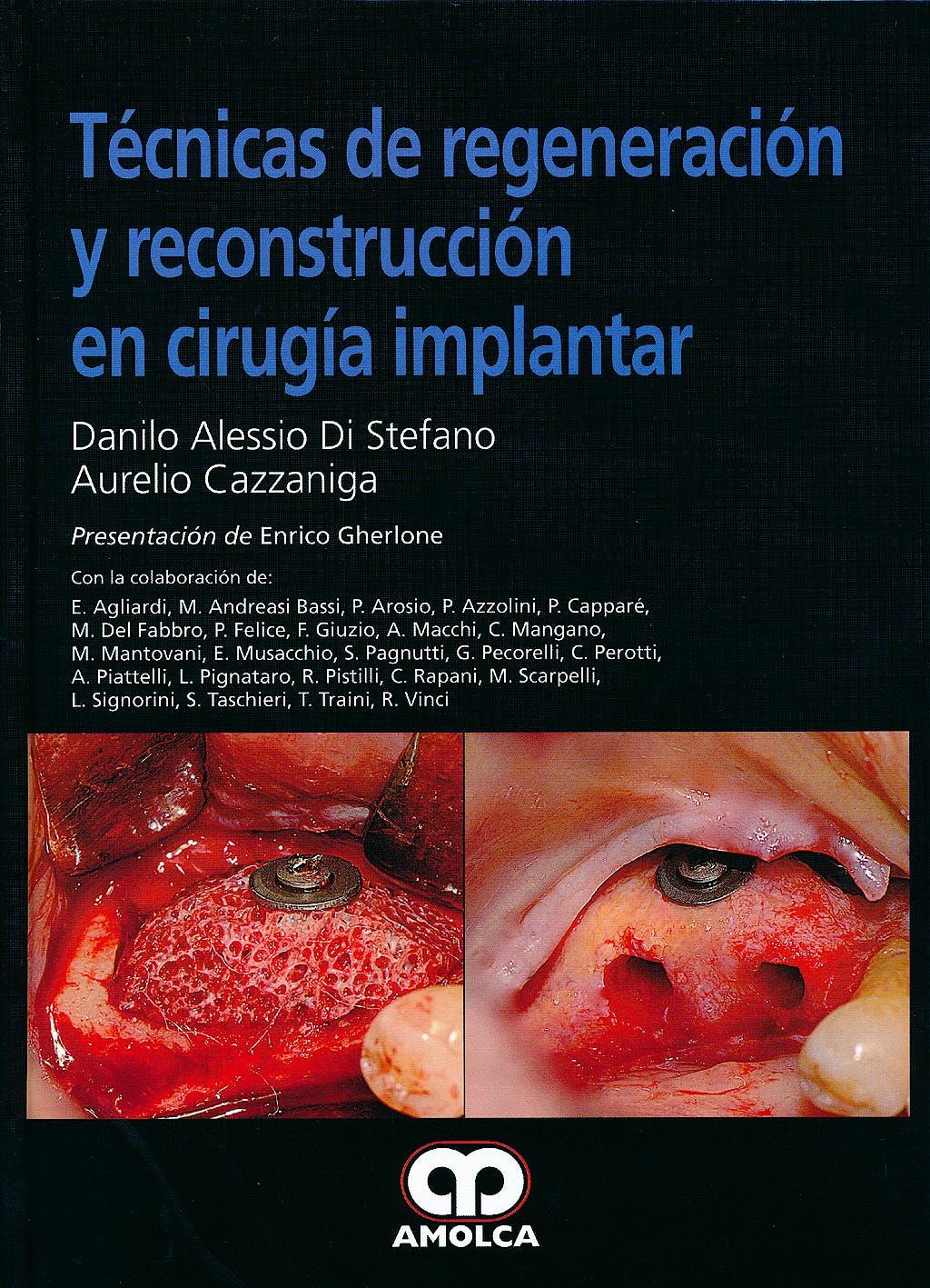 Portada del libro 9789588760872 Técnicas de Regeneración y Reconstrucción en Cirugía Implantar