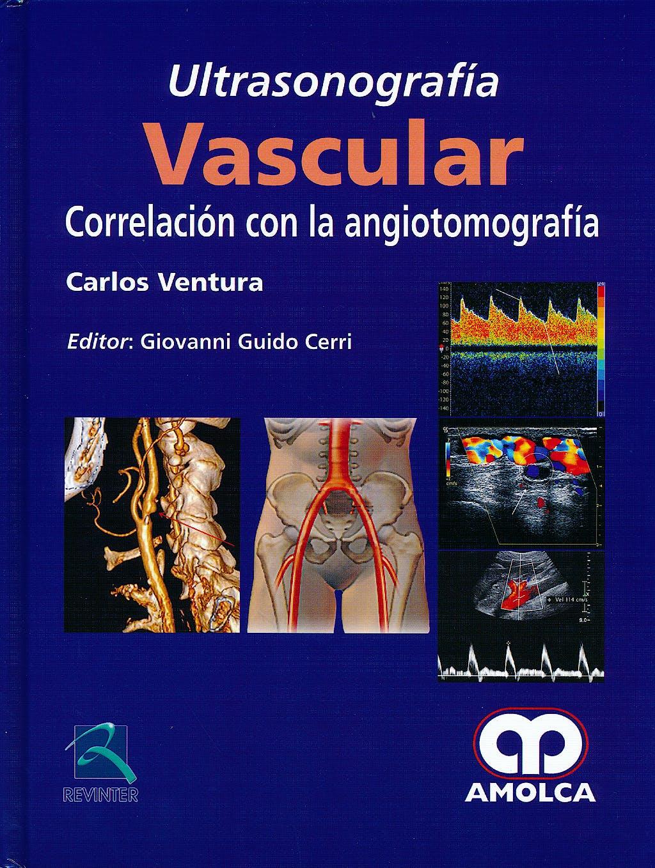 Portada del libro 9789588760889 Ultrasonografía Vascular. Correlación con la Angiotomografía