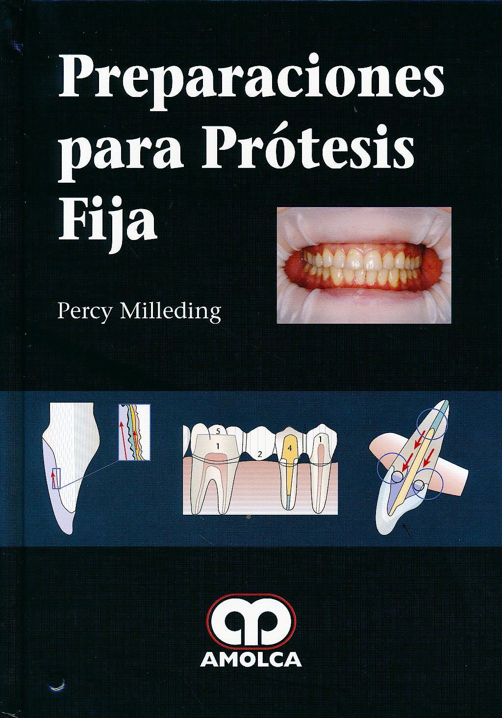 Portada del libro 9789588816036 Preparaciones para Prótesis Fija