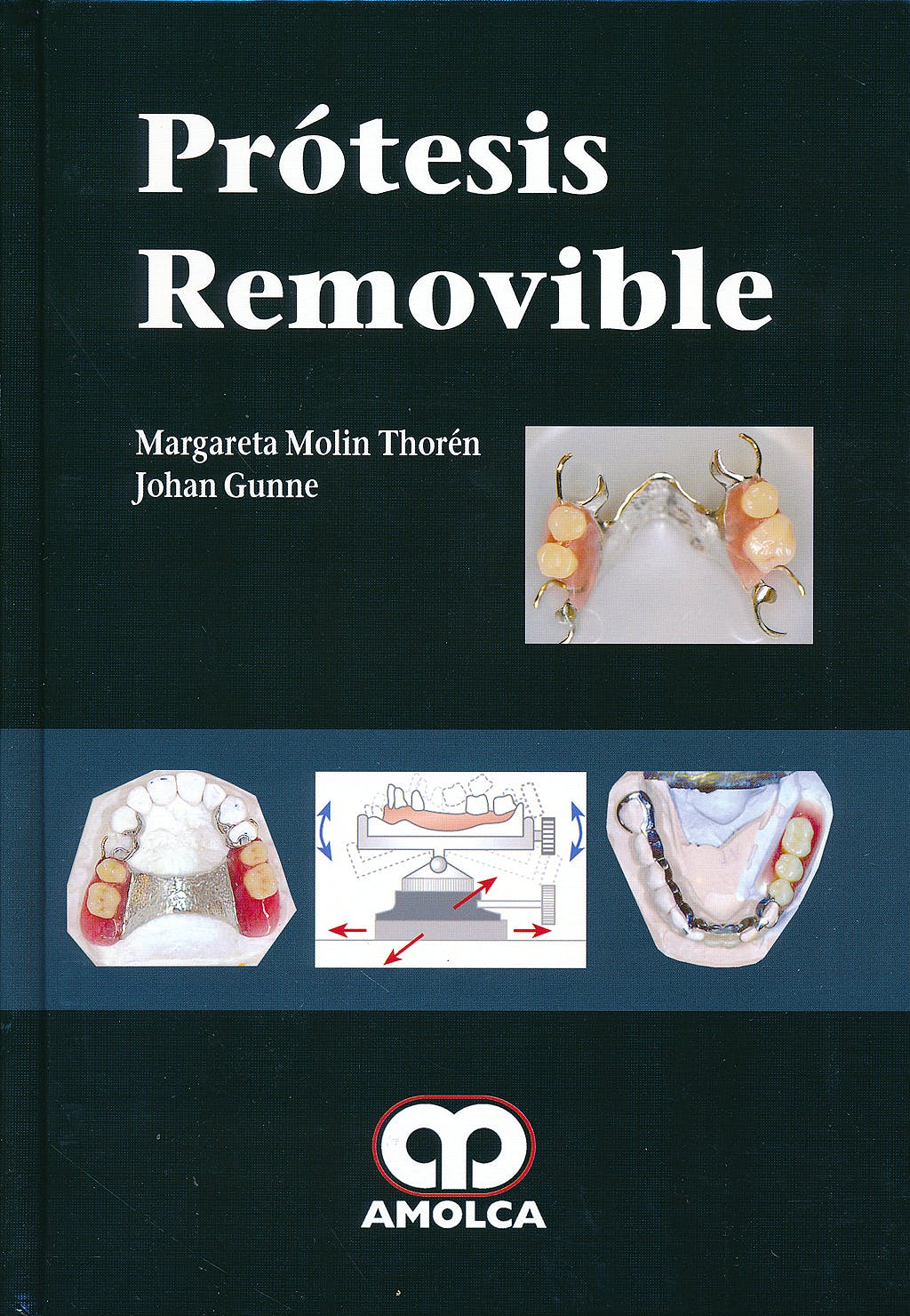 Portada del libro 9789588816227 Prótesis Removible