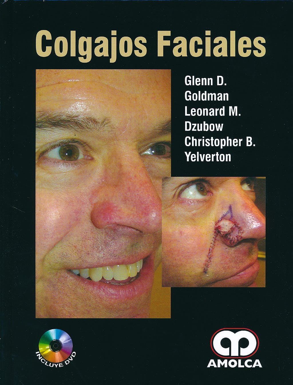 Portada del libro 9789588816326 Colgajos Faciales + DVD
