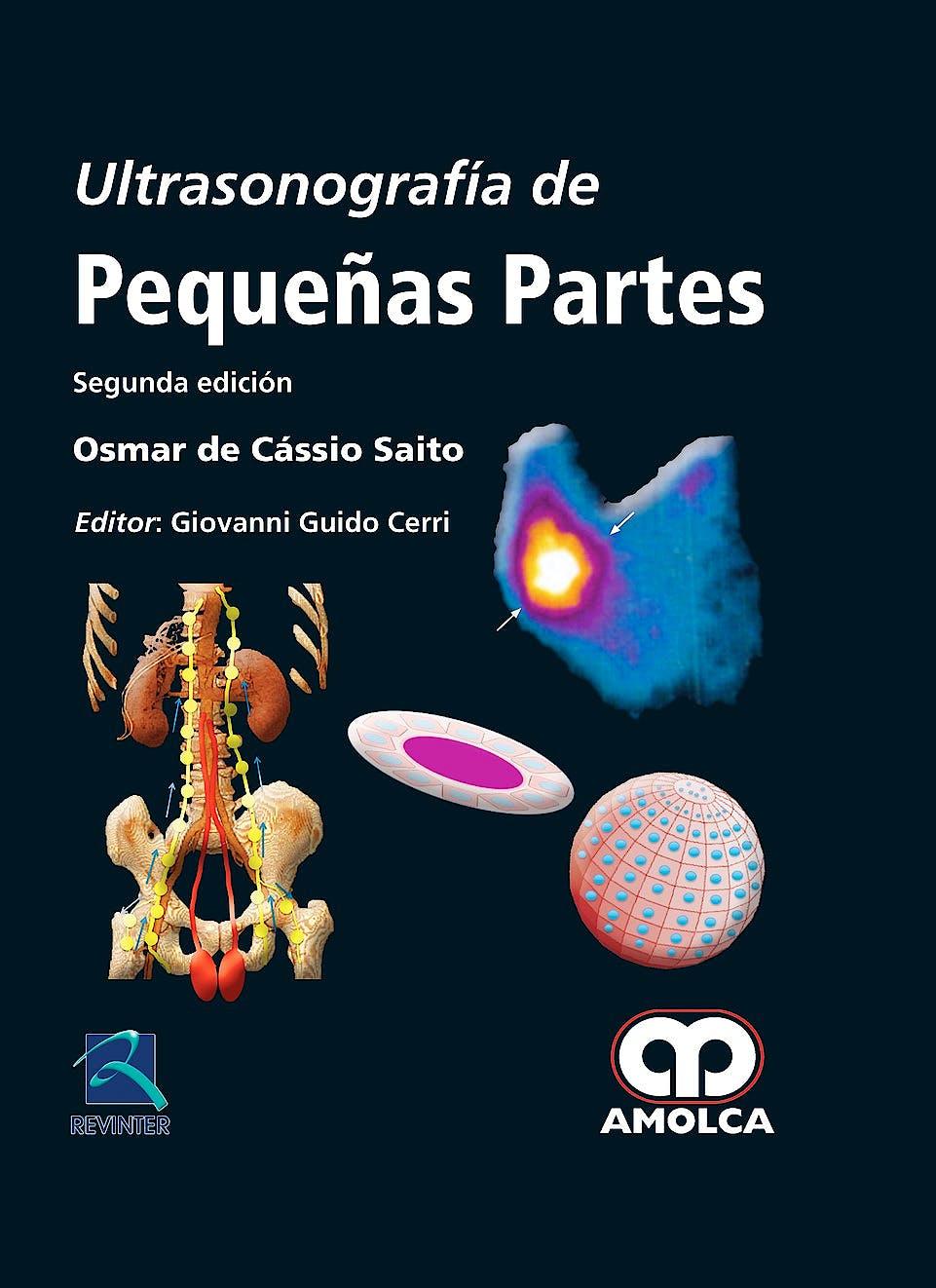 Portada del libro 9789588816333 Ultrasonografía de Pequeñas Partes